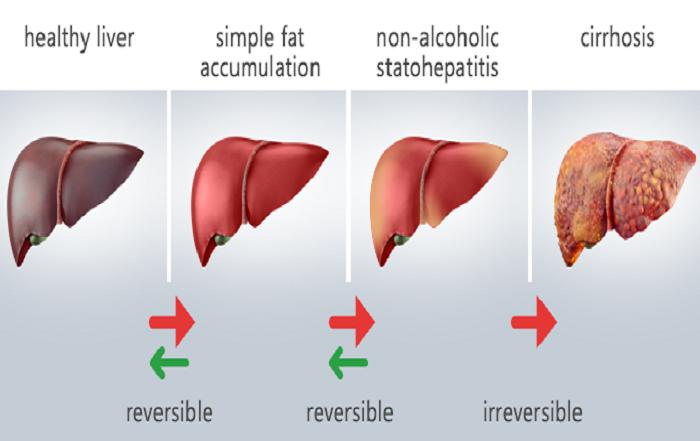 Gan nhiễm mỡ không do rượu (NAFLD) – Một vấn đề đang gia tăng