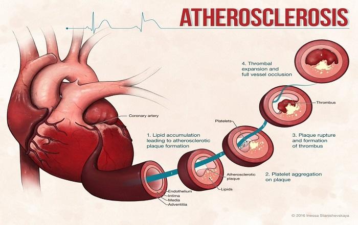Loại thực phẩm nào dễ dẫn đến nhồi máu cơ tim?